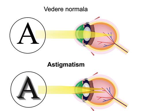 dacă viziunea este afectată de astigmatism