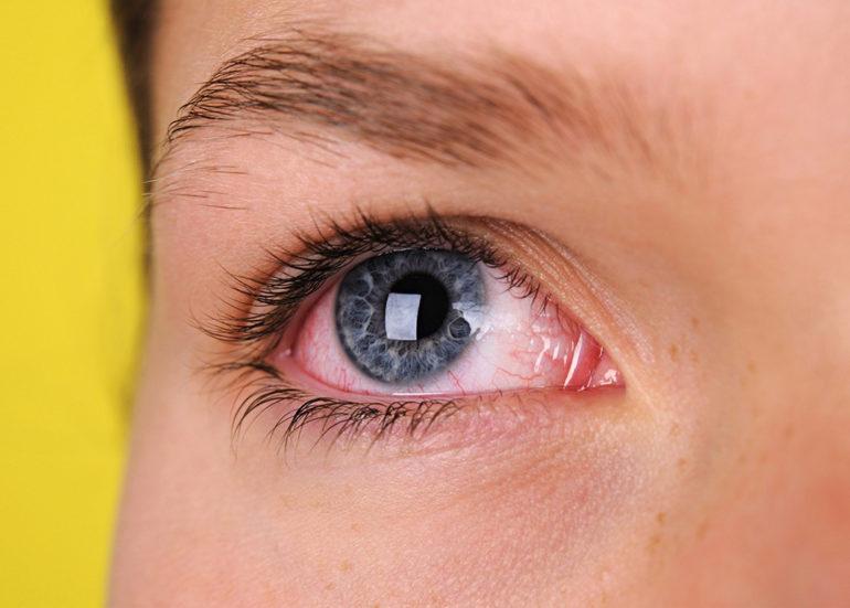 efectul cosmeticelor asupra vederii