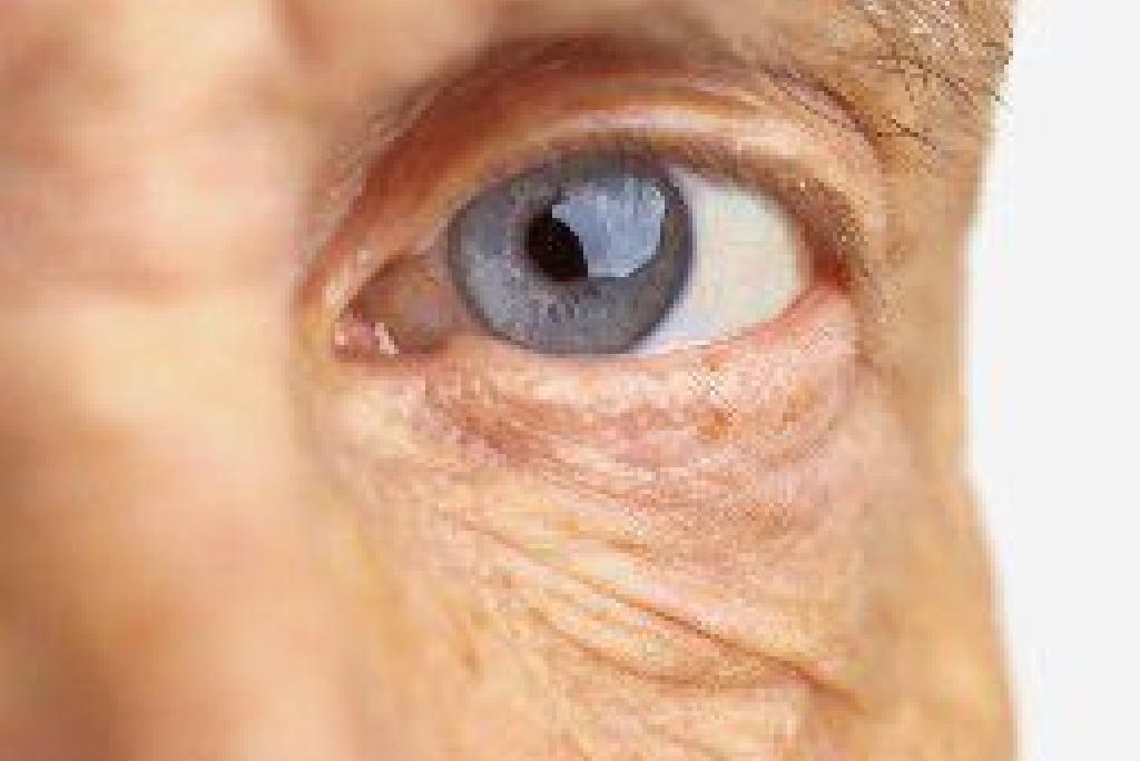 examinarea completă a ochilor intoxicații alcoolice vedere încețoșată