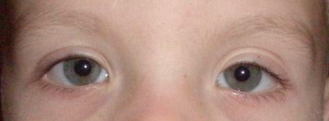boală de ochi asupra mea pragul viziunii pentru muncă