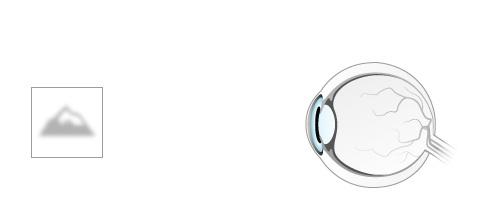 restaurarea vederii cataracta cum apar miopia și hipermetropia
