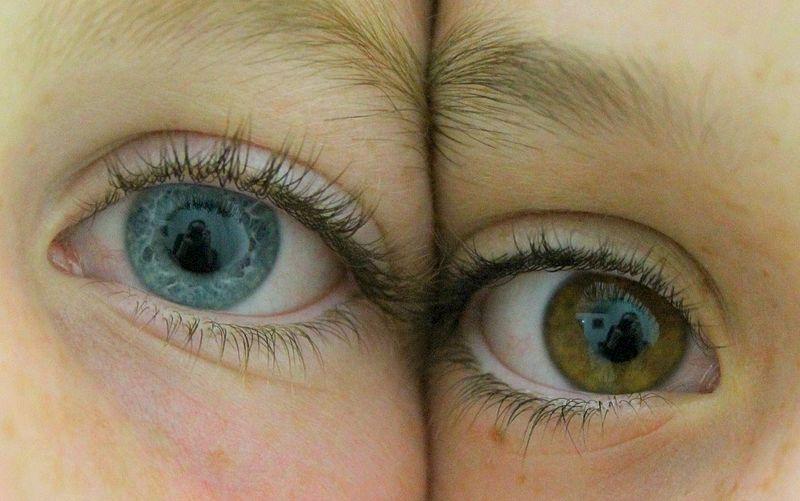 gradul de deficiență vizuală