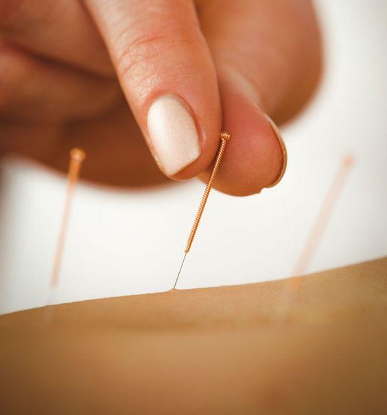 hipermetropie de acupunctură