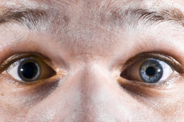 Rezultate diferite la testul de vedere - cum este posibil?