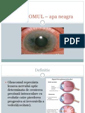 Glaucom boala oculare care duce la pierderea vederii