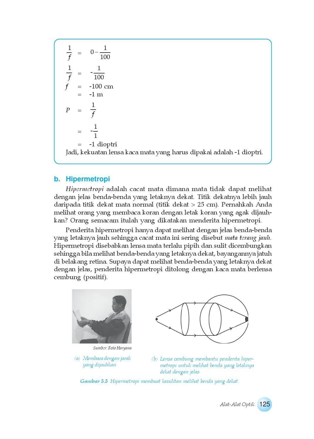 hipermetropie 1 5)