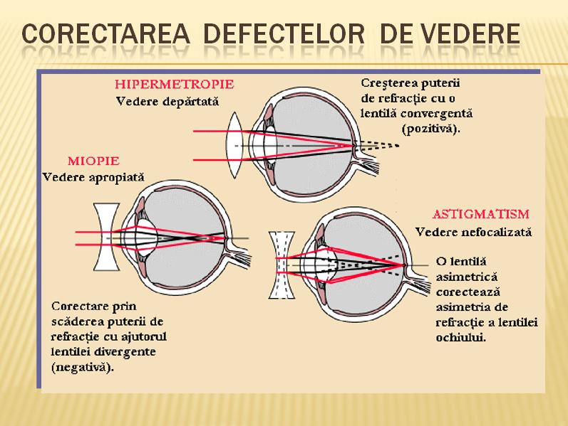 hipermetropie, caracteristici congenitale și dobândite