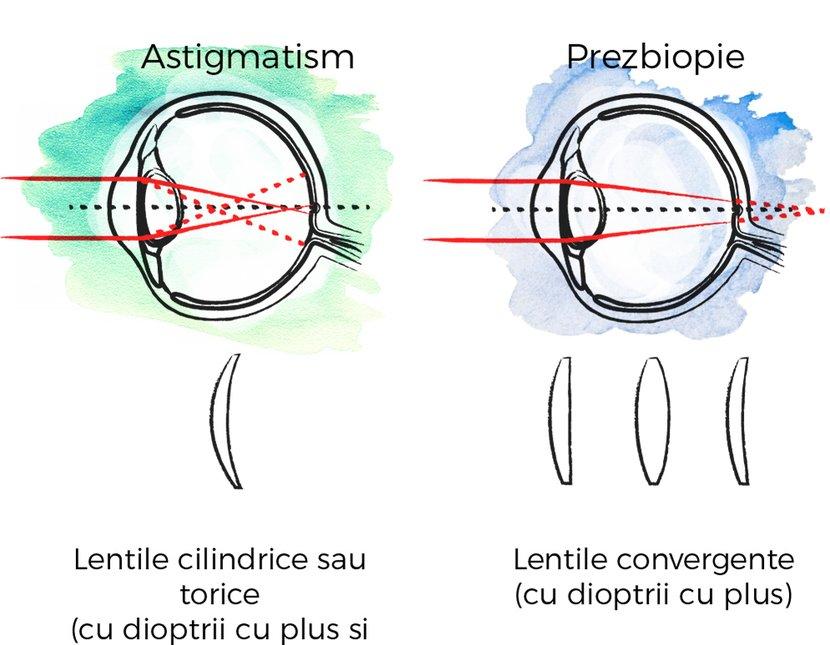 hipermetropie diferită a ochilor