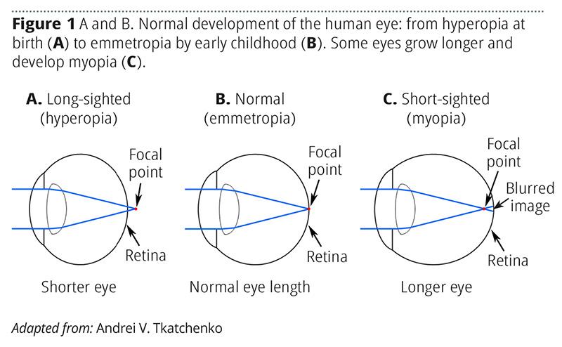 Optical human eye defects. Myopia and hyperopia. Clip art | k | Fotosearch