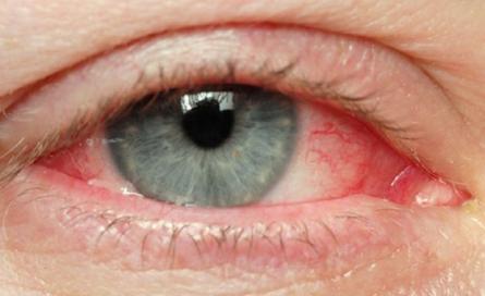 keratita oftalmologie)
