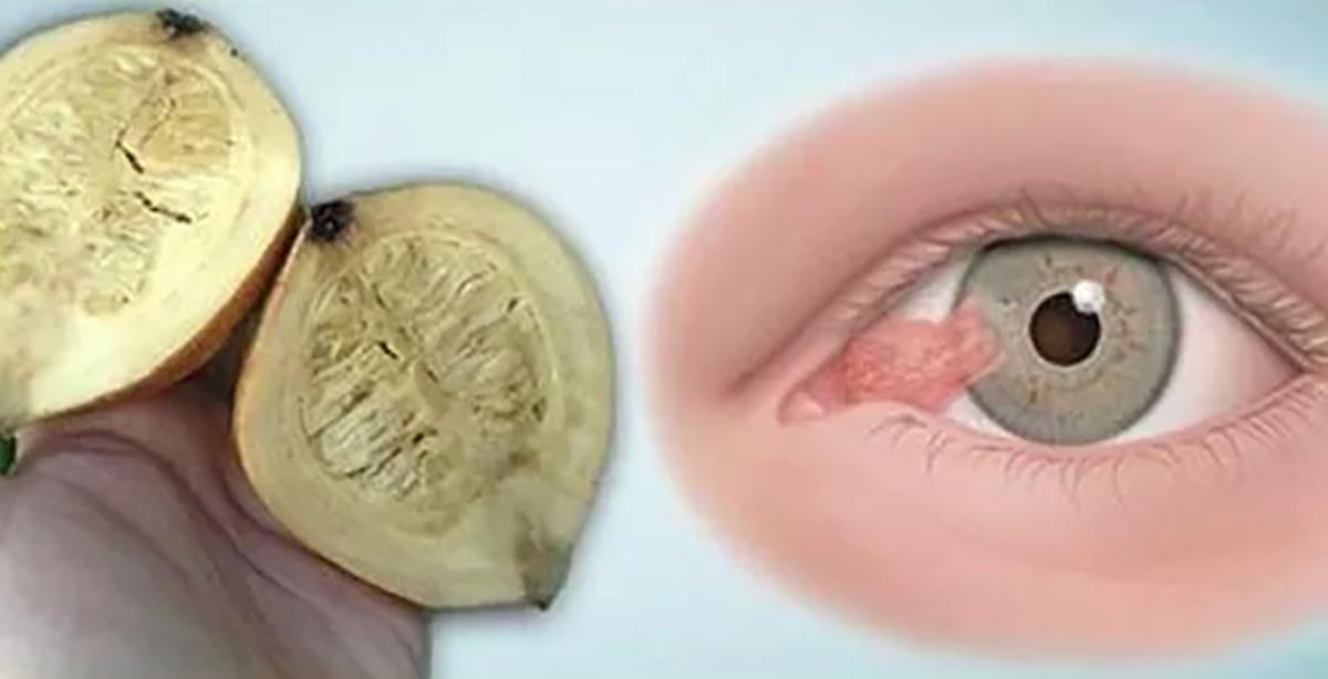 masaje oculare pentru îmbunătățirea vederii)
