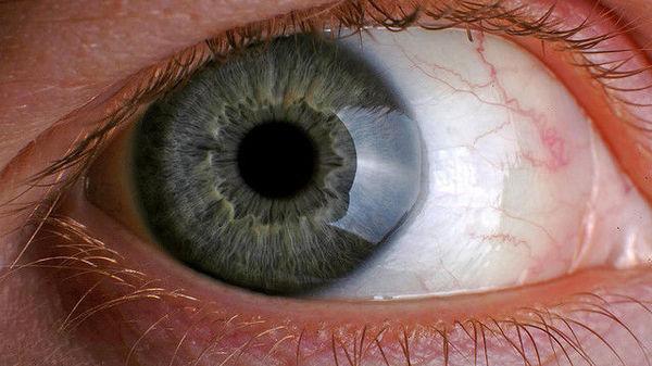 viziunea s-a îmbunătățit de la 0 7 vederea se deteriorează la adolescenți