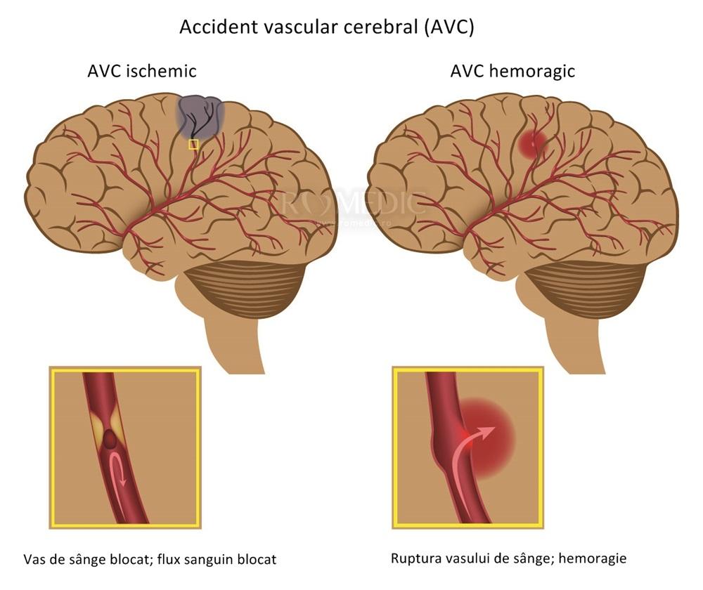 medicamente pentru afectarea vizuală de origine vasculară refacerea vederii în 2 zile