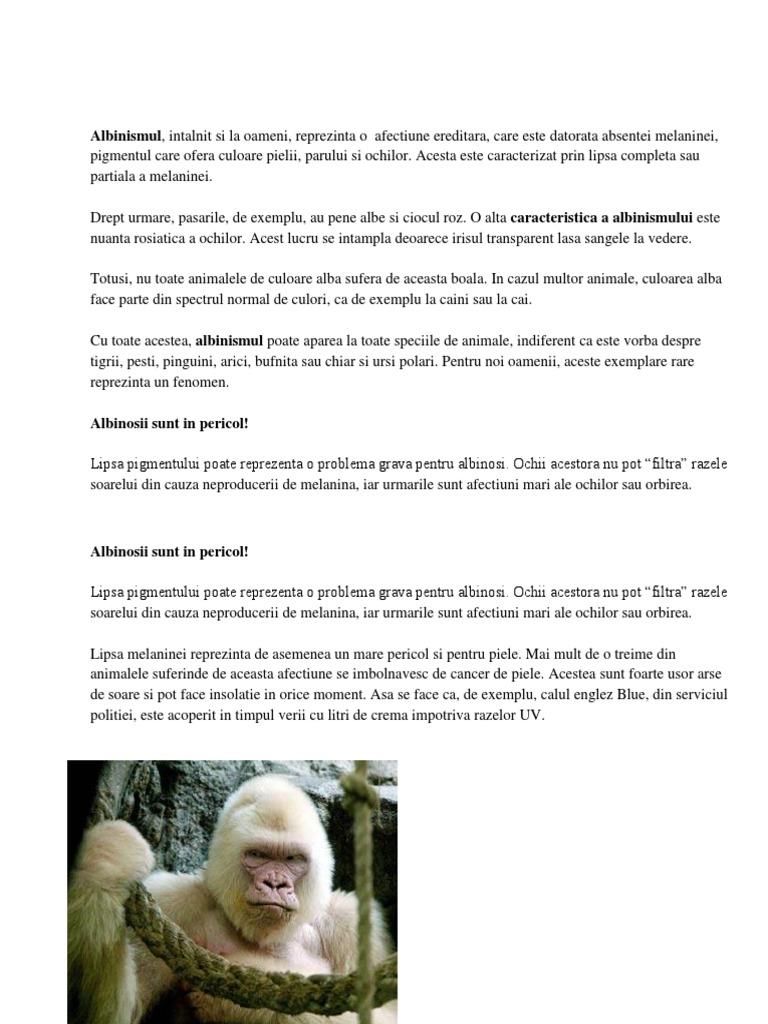 Albinismul – Despre ochi