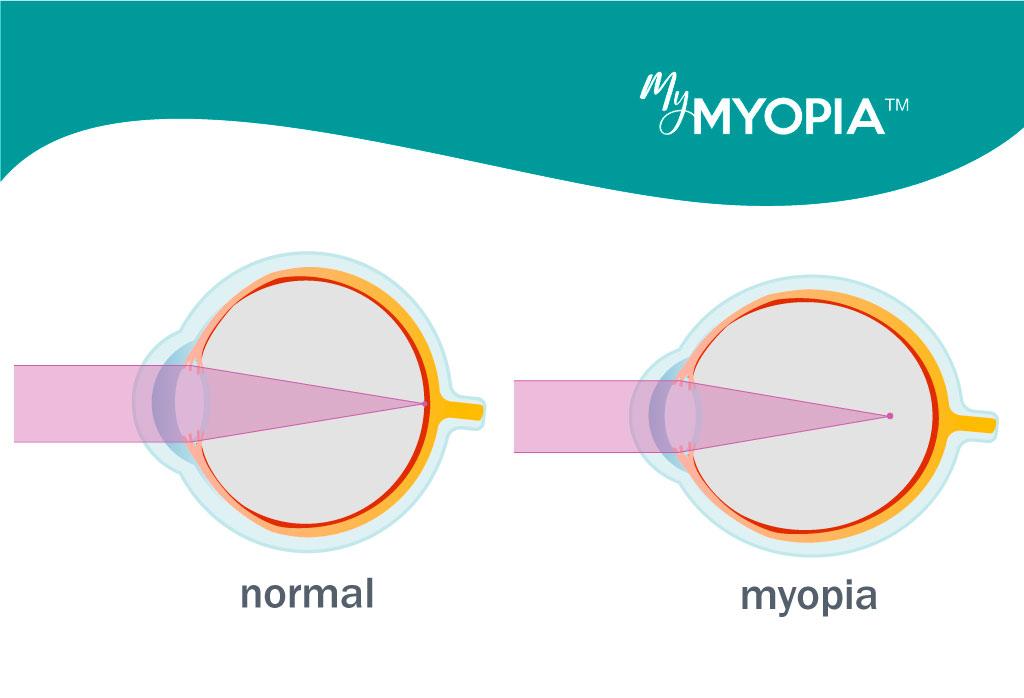 întinderea miopiei