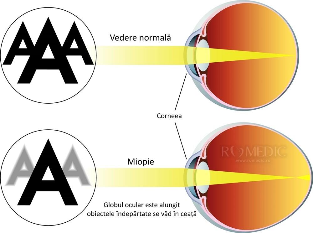 miopia este cauzată)