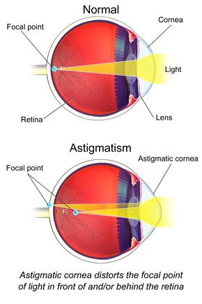 Astigmatism Myopic Operatie