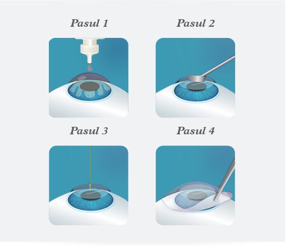 miopie cu astigmatism operatie