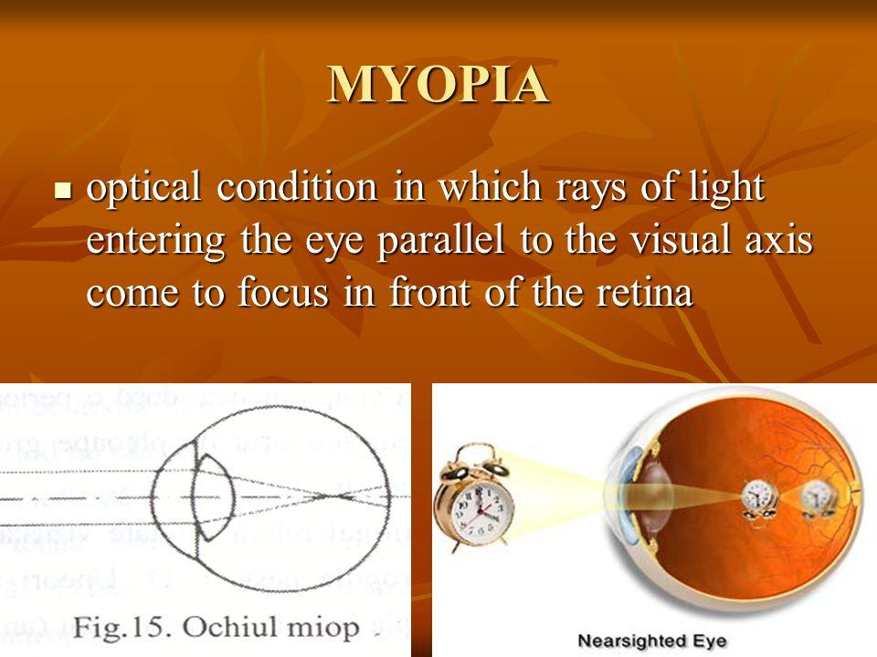 Chirurgie pentru miopie (miopie), metode moderne de corecție - Preparate injectabile September