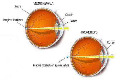 Deficiențe vizuale: Ce este Presbiopia? Cum este tratată? | Blog localuri-bucuresti.ro