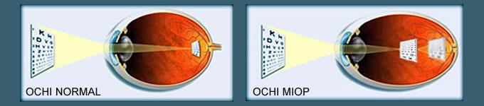 mușchii ochilor care antrenează miopia)
