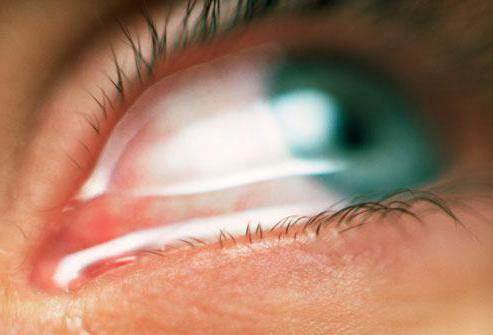 naftizină și vedere