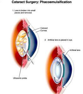îndepărtarea cataractei la restabilirea vederii)