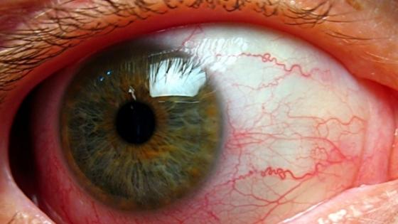 ochii rănesc brusc vederea