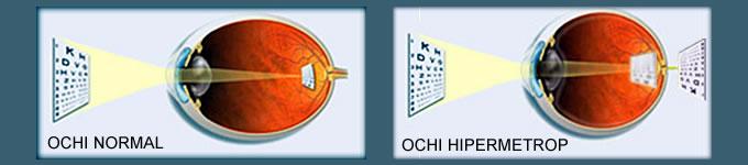 se formează acuitatea vizuală