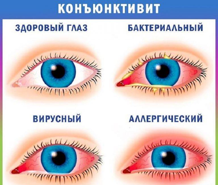 oftalmologie dacryocistită