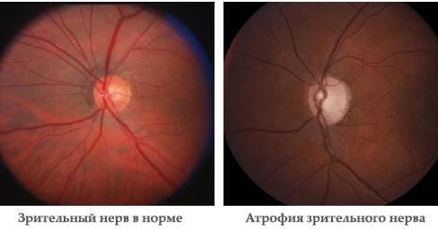 orbire vizuală reziduală)