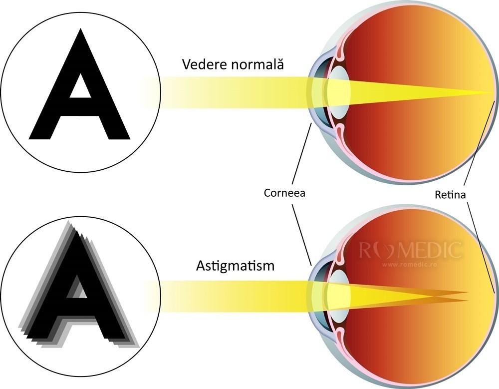 patologia formelor de vedere