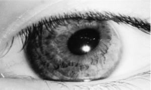 rândul testului ocular)