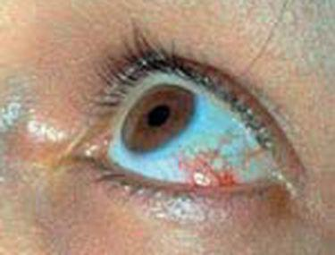 scăderea acuității vizuale ochi roșii)