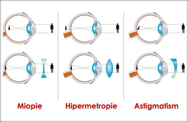 tabel de contrast hipermetropie și miopie)