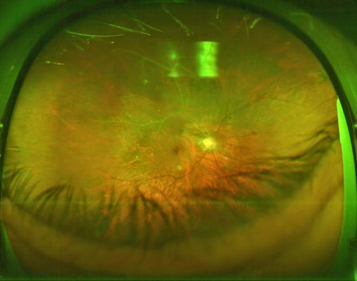 tratamentul restaurativ al vederii