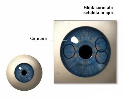 vedere înnorată ochiul exercită miopie hipermetropie