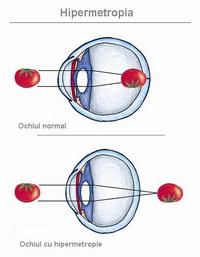 vedere normală și hipermetropie)