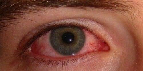 vederea a căzut la ochi roșii)