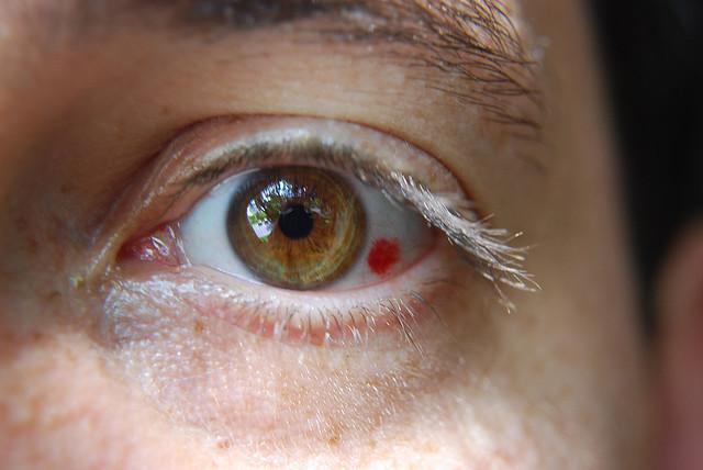 vederea dintr-un ochi a dispărut brusc)