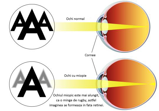 Trei pași pentru a trata natural miopia