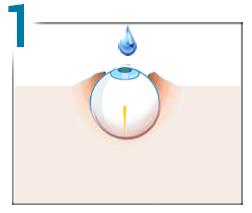 monoclu pentru vedere vedere orbire color