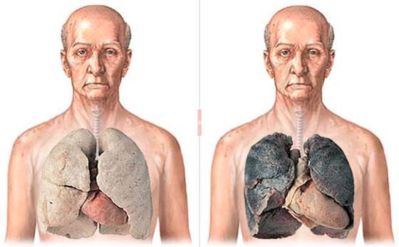 viziunea asupra nicotinei