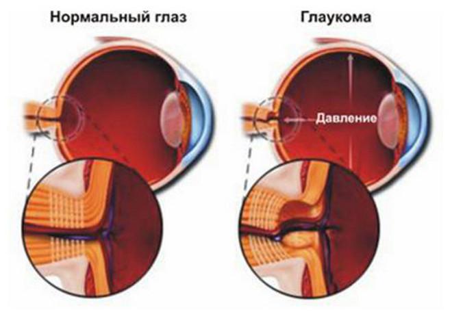 viziunea este hipermetropie cum se restabilește)