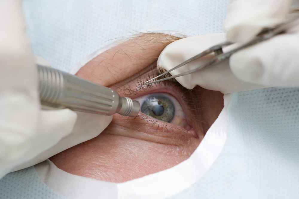 tratarea glaucomului + și a cataractei
