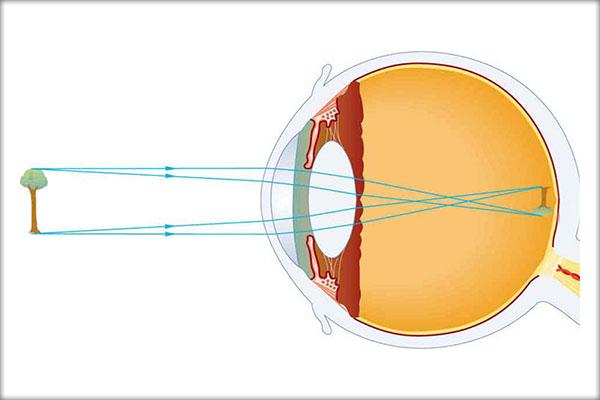 miopie cu formă normală a ochilor