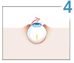 ce este corectarea vederii cu laser metoda porților restabilirea vederii
