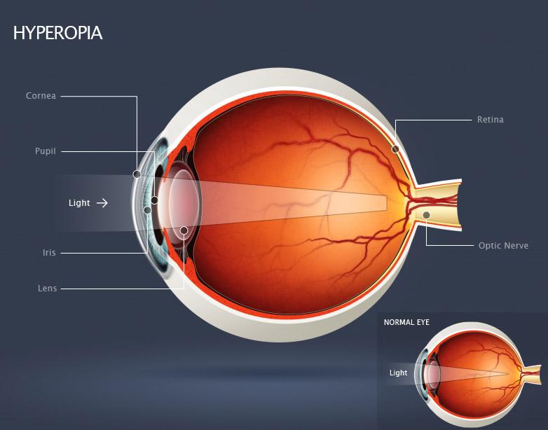 de ce vederea de aproape s-a deteriorat