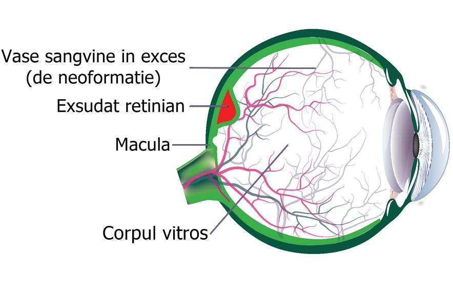 cum se tratează miopia legată de vârstă