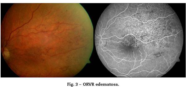 prethrombosis oftalmologie a venei retinei centrale